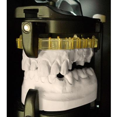 DentSCAN