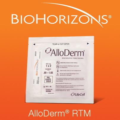 AlloDerm RTM