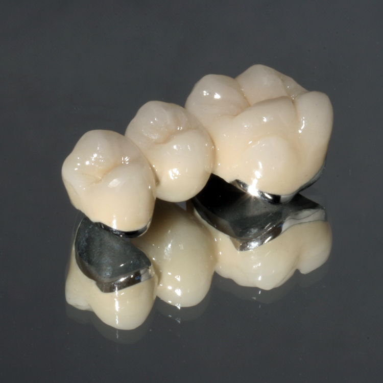 Drake Dental Laboratories - Tradition Series PFM's and Full Cast Restorations