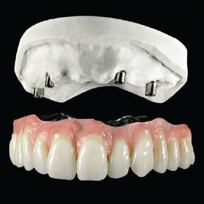 DAL Implant Borne Bridge