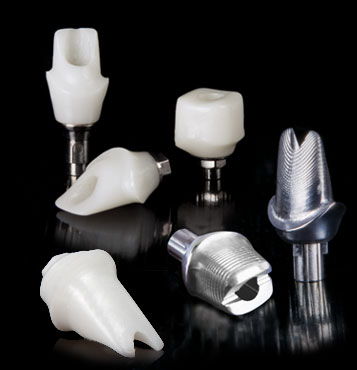 Inclusive Custom Implant Abutments