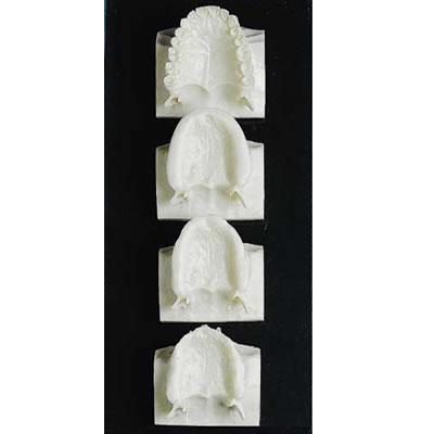 Set of 4 mounted maxillas.