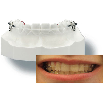 GREAT LAKES ORTHO ASTICS RETAINER