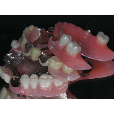 Young Dental Laboratory FRS and DurAcetal