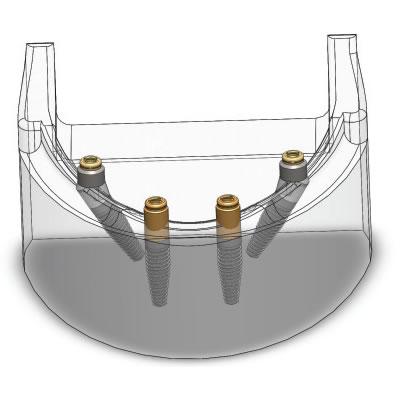 Zest Anchors LOCATOR for Implant Procedure