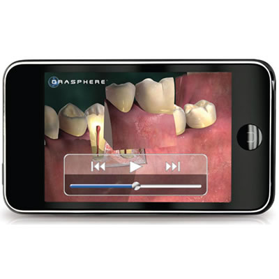 3D Patient Education Animations on iPod Touch