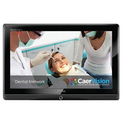 CaerVision Network