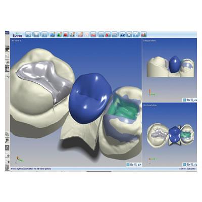 CYNOPROD CAD/CAM SOLUTIONS