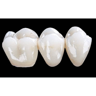 CONTINENTAL DENTAL LABORATORY - CAD/CAM RESTORATIONS