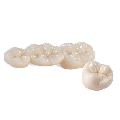 BruxZir Solid Zirconia Crowns