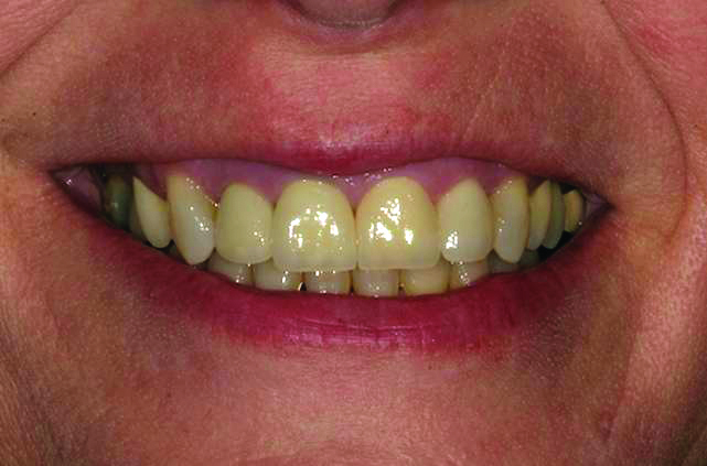 Z-Sthetic Zirconia Crowns
