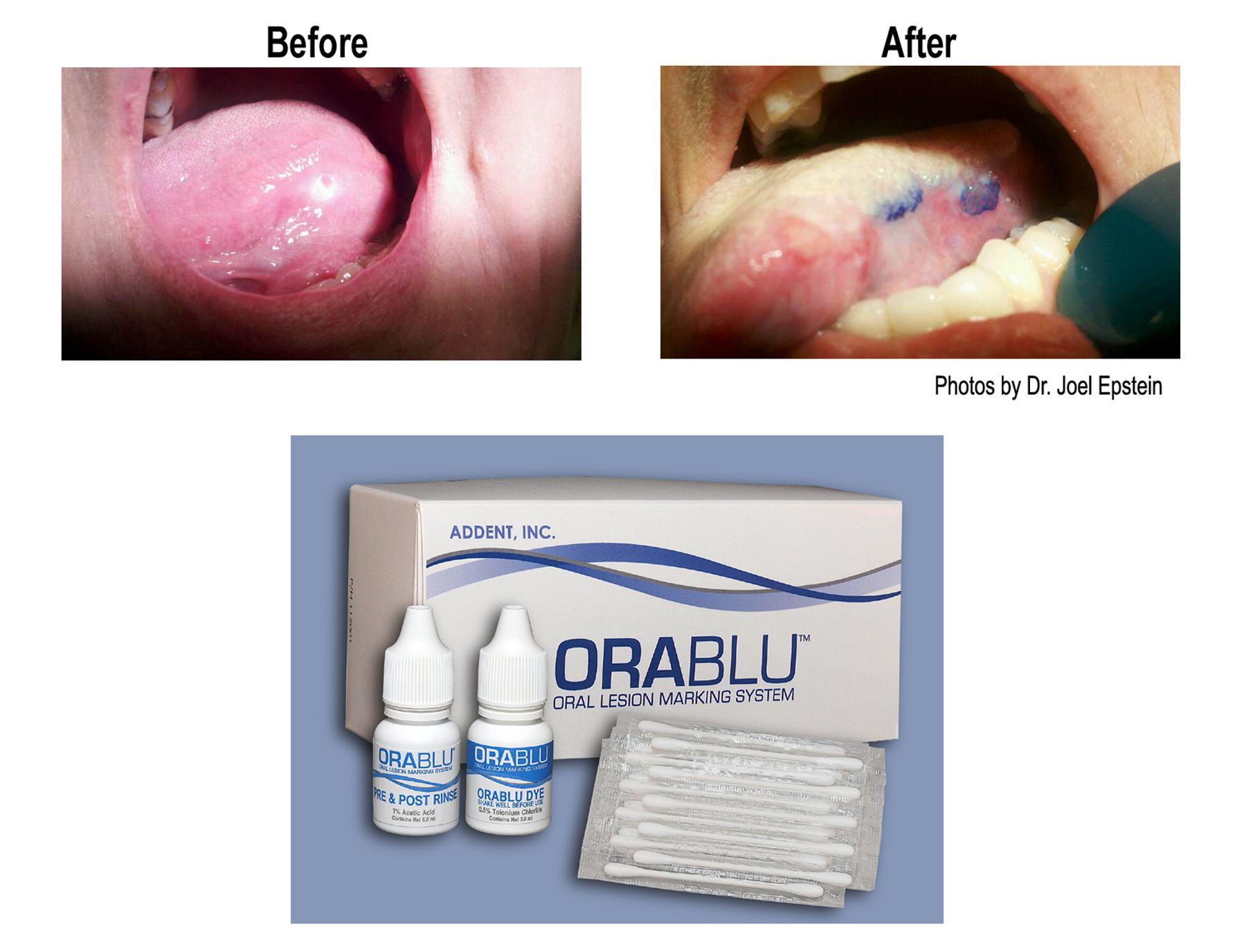 OraBlu Oral Lesion Marking System