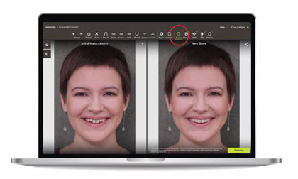"""ClinCheck """"In-Face"""" Visualization Tool for the Invisalign Go System"""