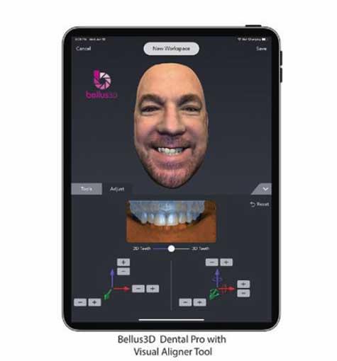 Visual Smile Aligner in Dental Pro App