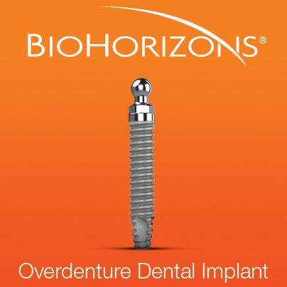 Biohorizons Overdenture Implant