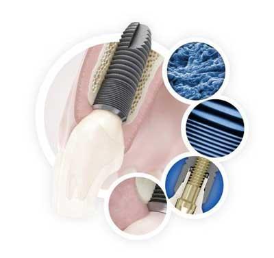 ASTRA TECH Implant System EV