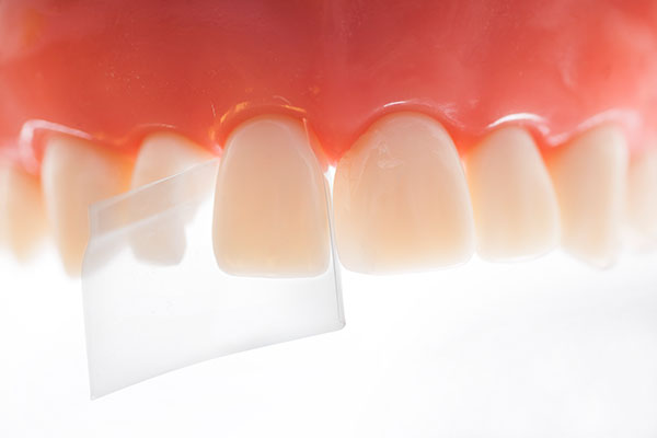 Directa ProxyPal® - The pre-shaped progressive curvature aids to create incisial fillings with a correct anatomical shape