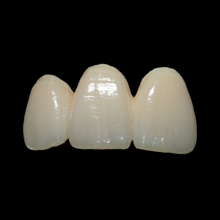 Drake Dental Laboratories - IPS e.max Lithium Disilicate