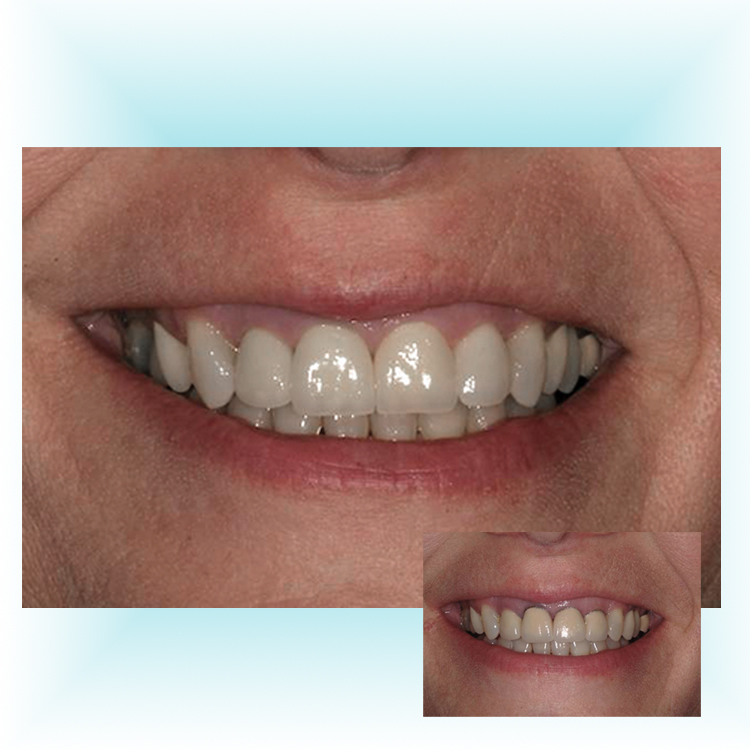 Drake Dental Laboratories - Z-Sthetic Zirconia