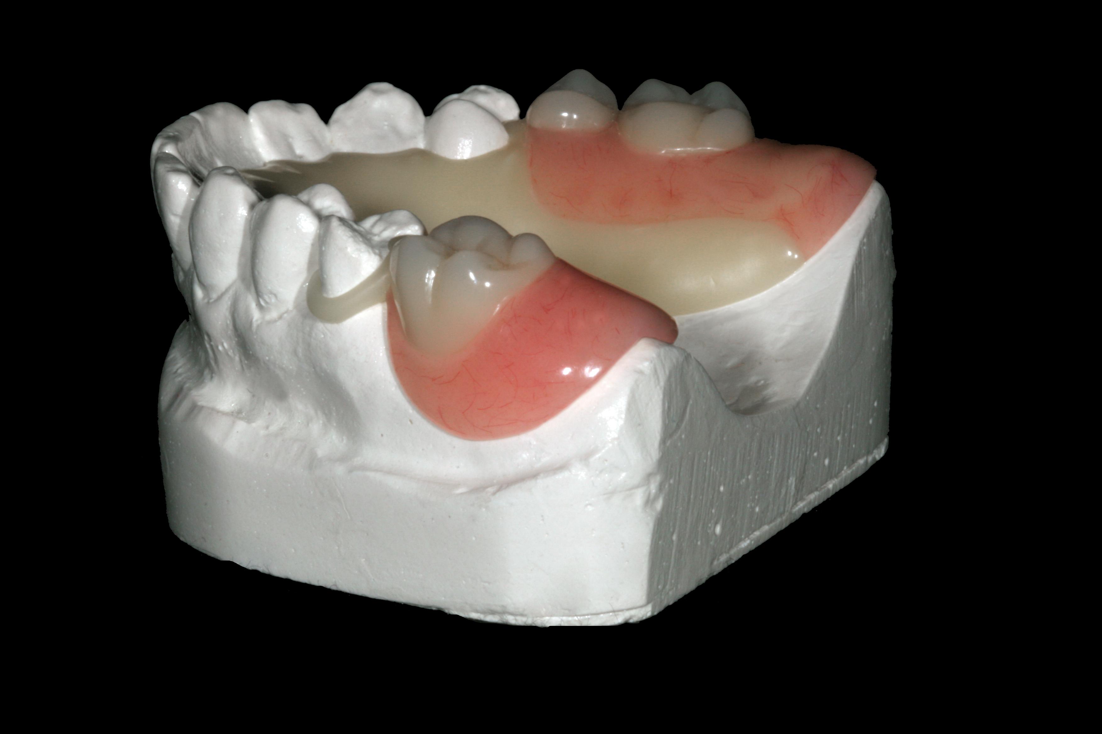 Drake Dental Laboratories- DuraTek