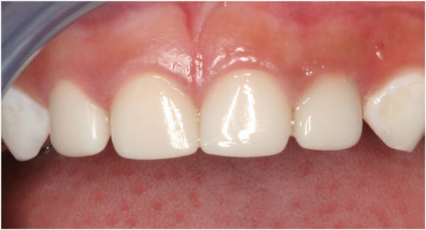 EZ-Pedo Pediatric Zirconia Crowns