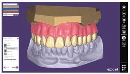 exocad DentalCAD 2.4 Plovdiv