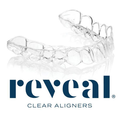 Reveal® Clear Aligners