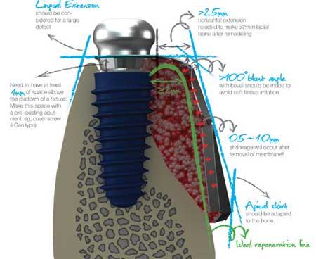 i-Gen Titanium Mesh Membrane
