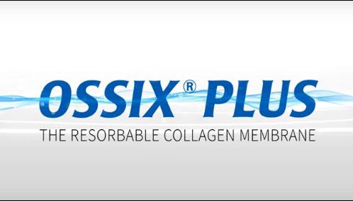 OSSIX® PLUS