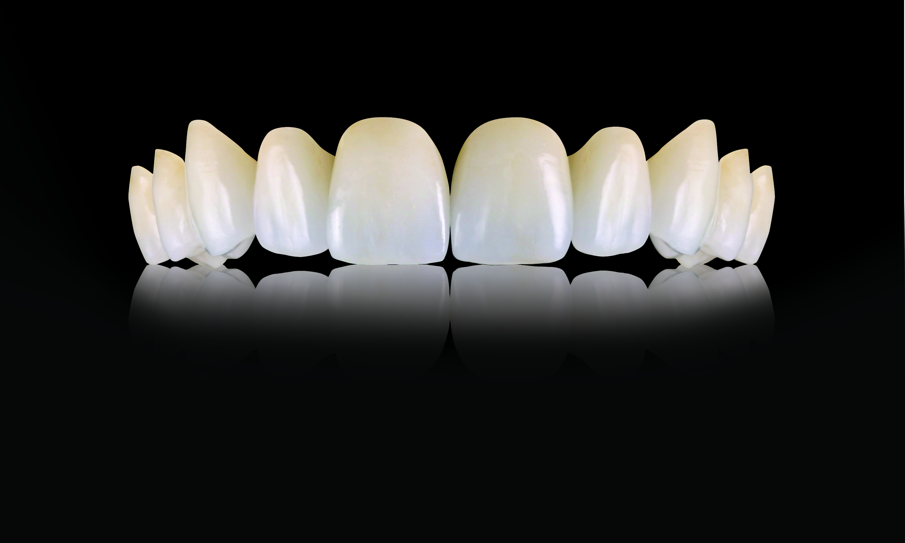 Oral Arts Dental Laboratories - IPS e.max Crowns