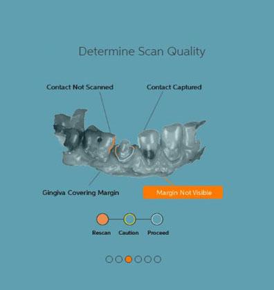 Scan Clarity Score