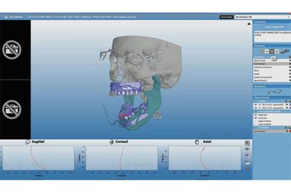 Planmeca 4D™ Jaw Motion