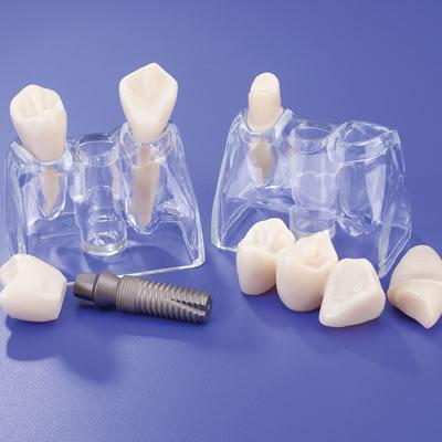 Implant-Bridge Comparison Model Set