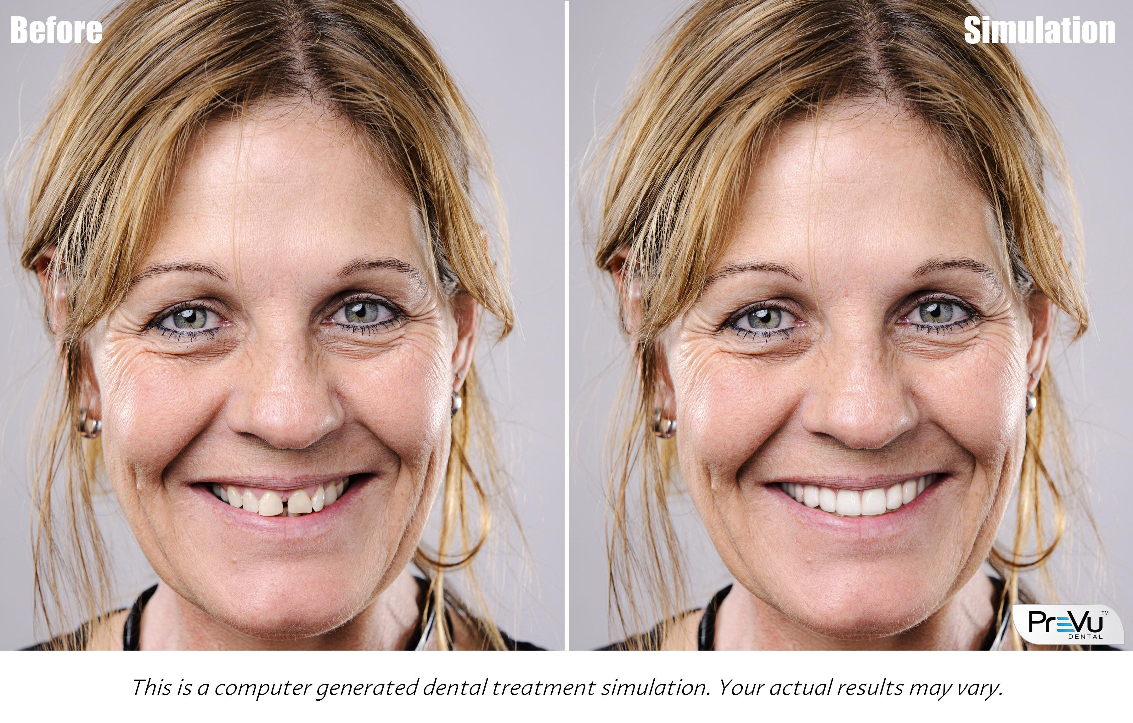 PreVu Cosmetic Simulation & Smile Design Software