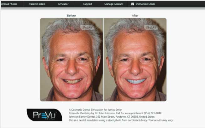 PreVu Dental Software