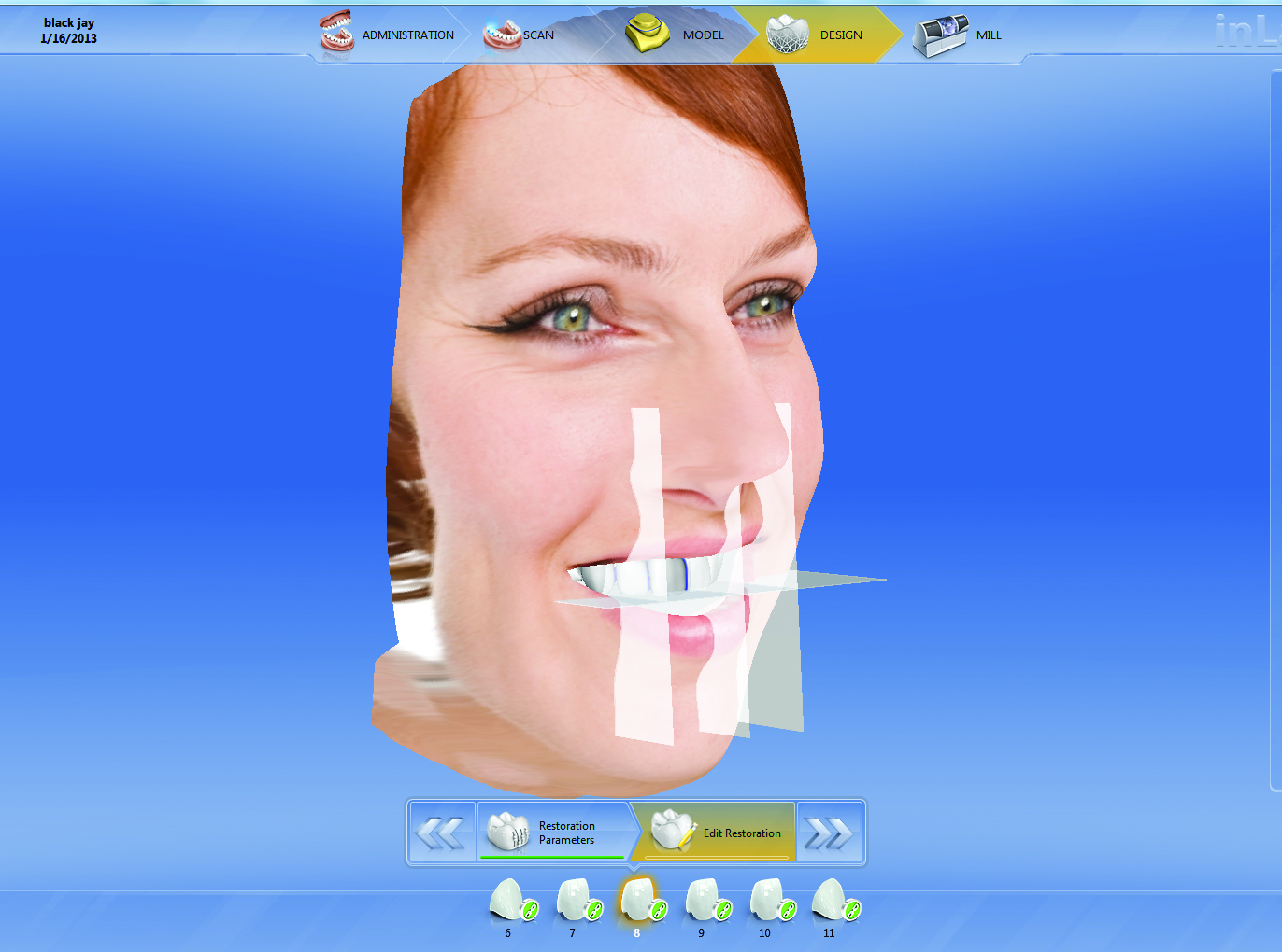 CEREC Software 4.2