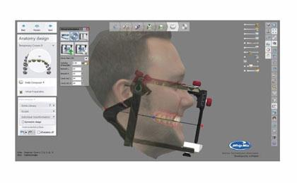 Bellus3D Dental Pro Scanning Solution