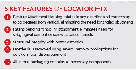 5 Key Features of Locator F-TX