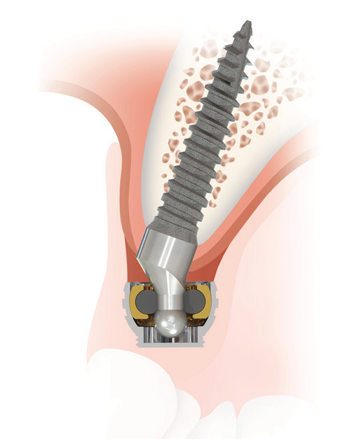 SATURNO Narrow Diameter Implant System